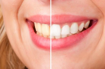 Teeth Whitening Rocky River | Rocky River Dentist