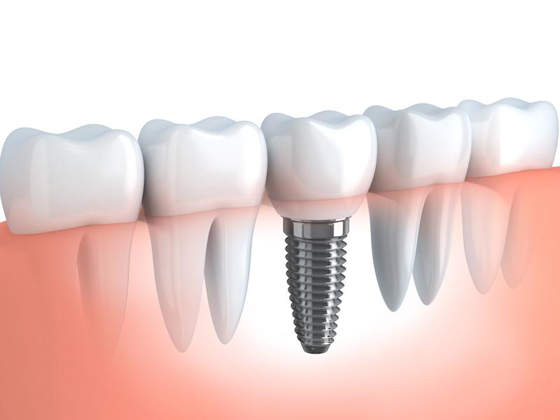 Dental Implants Rocky River | Dentist Rocky River