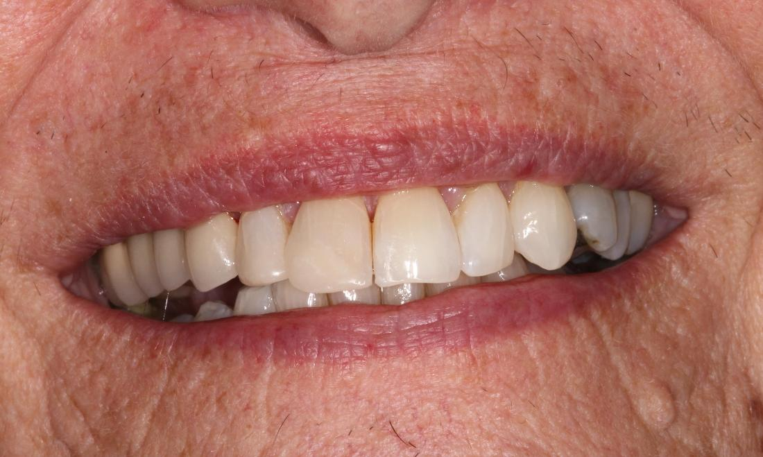 Bleaching and Composite Buildups